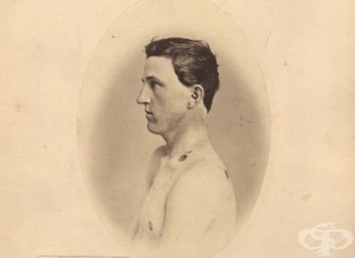 Рийд Бонтекю и ролята му в утвърждаването на медицинската фотография - изображение