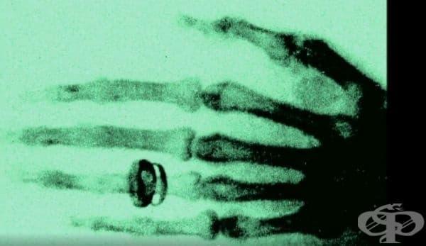 Вилхелм Рьонтген и медицинското му откритие от 1895 г. - изображение