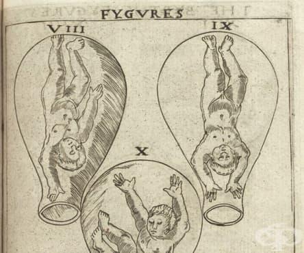 Ролята на изображенията, илюстриращи развитието на плода в утробата, в акушерските книги от 16-ти век - изображение