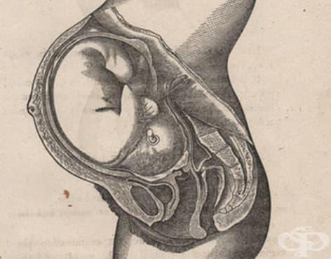 Схващанията на Джон Бракстън Хикс за контракциите по време на бременността от 1871 година - изображение
