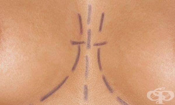 Силиконовите гръдни импланти, разгледани през погледа на медицинската история - изображение