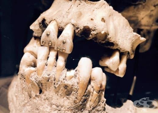 Стоматологията през хилядолетната човешка история - изображение