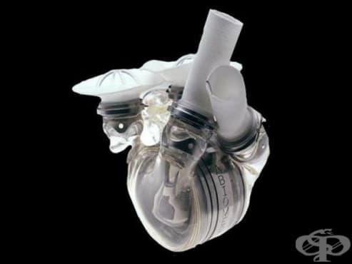 """Създаване на първото изцяло изкуствено сърце """"AbioCor"""" на компания """"Abiomed"""" през 2001 година - изображение"""