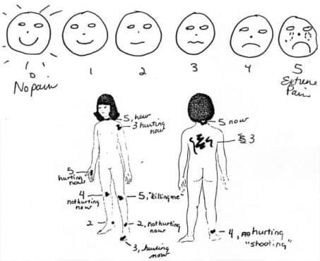 """Създаване на скалата """"Уонг-Бейкър """"за оценка на болката при децата през 80-те години на 20-ти век   - изображение"""