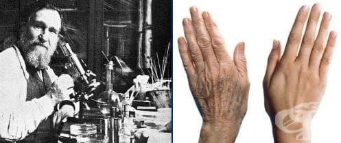 Теория на Иля Мечников за процеса на стареене - изображение