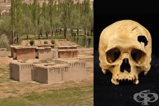 Асикли Хоюк - култура на 11 000 години, която познава трепанацията - изображение