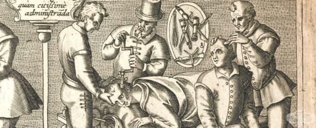 Лечение на мигрена с трепанация в древността: факт или мит - изображение