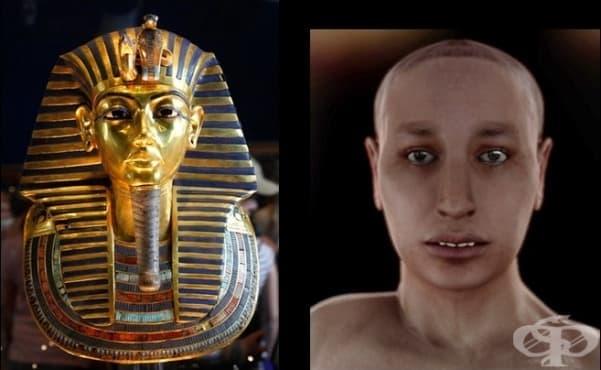 Тутанкамон – детето фараон с множество недъзи, плод на кръвосмесителен брак между брат и сестра - изображение