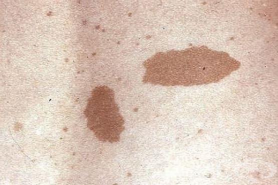 Хранене при неврофиброматоза - изображение