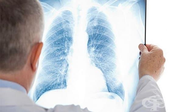 Хранене при пневмония - изображение