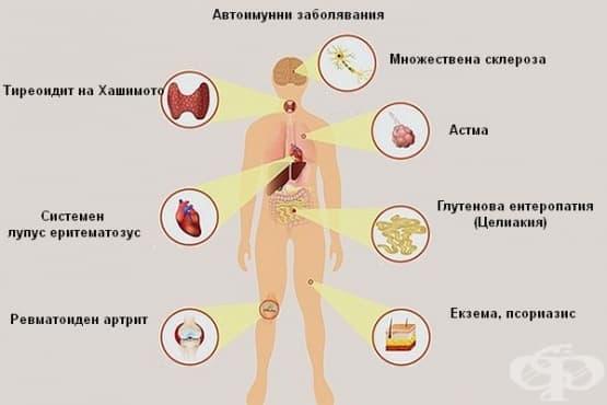 Хранене при автоимунни заболявания (Автоимунен протокол) - изображение