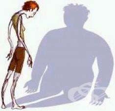 Хранене при анорексия - изображение