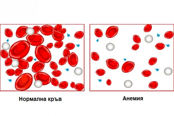 Хранене при анемия - изображение