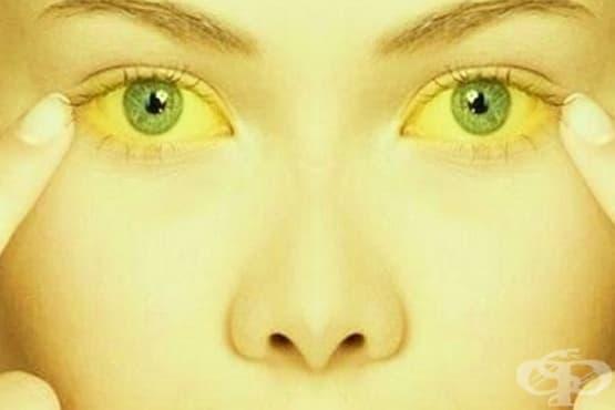 Хранене при жълтеница - изображение
