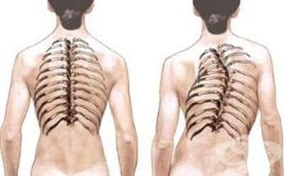 Хранене при сколиоза (странично изкривяване на гръбначния стълб) - изображение