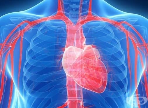 Какво представлява РТА (Перкутанната ангиопластика) и съдовото стентиране - изображение
