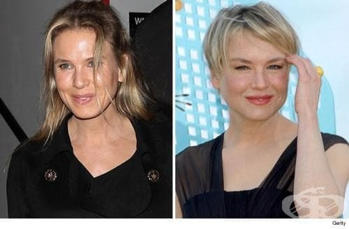 Звездни трансформации: Шокиращи фотографии на знаменитости, претърпели драстични промени във външния си вид - изображение