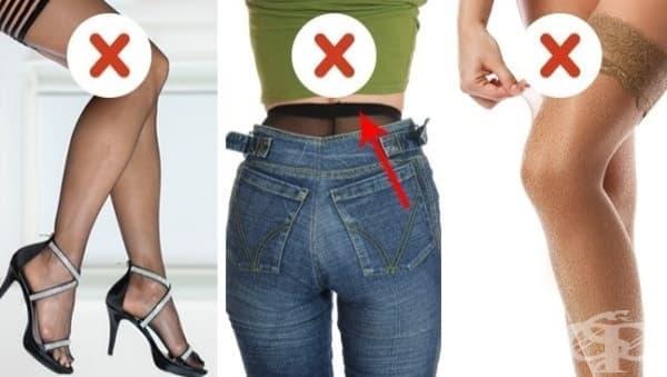 12 модни избора, които са проява на лош стил  - изображение