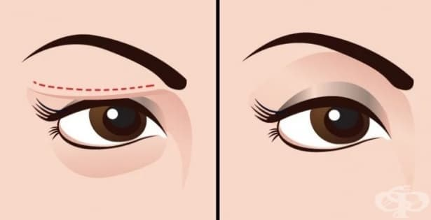 5 натурални съставки за стягане на отпуснати клепачи и премахване на тъмните кръгове под очите - изображение