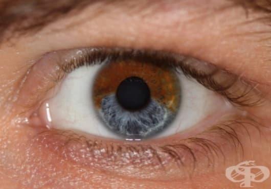 7 неща, които могат да променят цвета на очите ви - част 2 - изображение