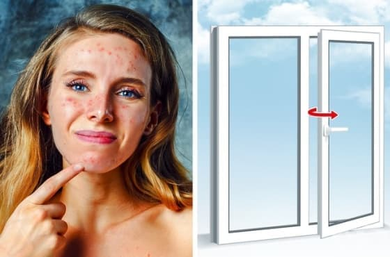 9 ежедневни предмета, които вредят на кожата ни – част 1 - изображение