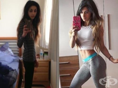 Вижте 7 смели момичета, преборили анорексията - изображение