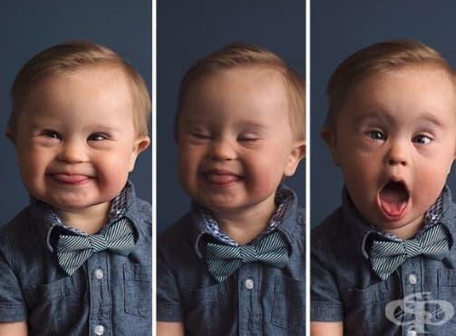 Дете е отхвърлено за рекламна кампания, защото има синдром на Даун, майката отвръща на удара - изображение