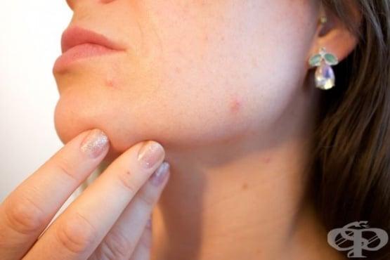 Домашна козметика против акне - изображение