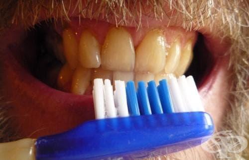 Как да си направите паста за зъби от глина с етерични масла от чаено дърво и мента - изображение