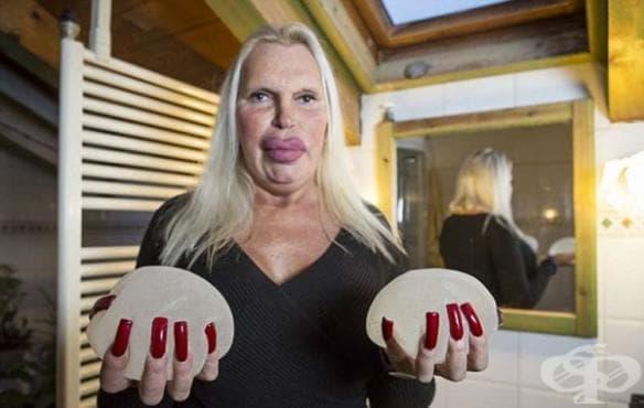 """Жена харчи 76 000 долара за пластични операции, които да й помогнат да постигне """"перфектното"""" тяло - изображение"""