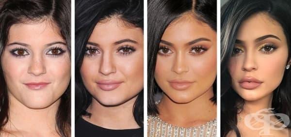 Колко струва да имаш инстаграм лице - операциите в името на красотата - изображение