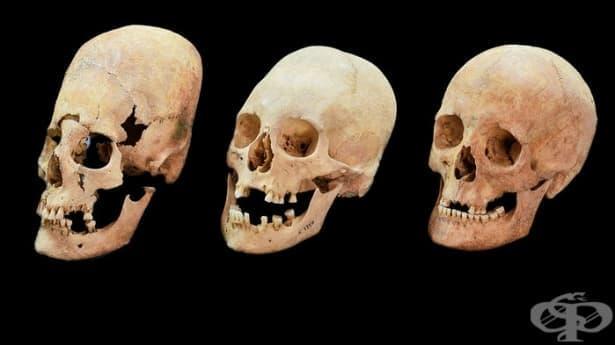 Странни издължени черепи свидетелстват за уреждането на политически бракове с българки в Бавария през VI в. - изображение