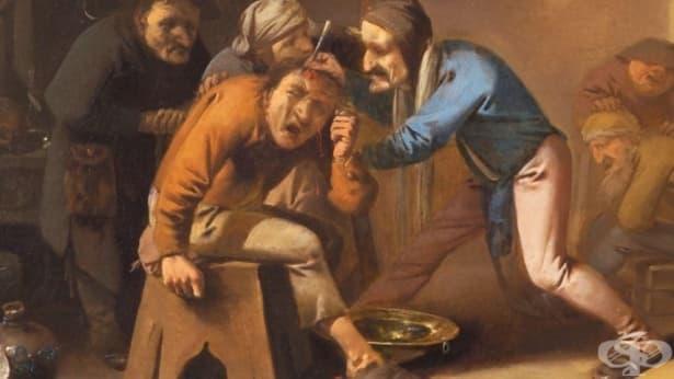 5 кървави медицински процедури, които (да благодарим на Бог) вече не се практикуват - изображение