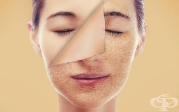 9 неща, които кожата може да ви подскаже за вашето здраве и как да си помогнете (1 част) - изображение