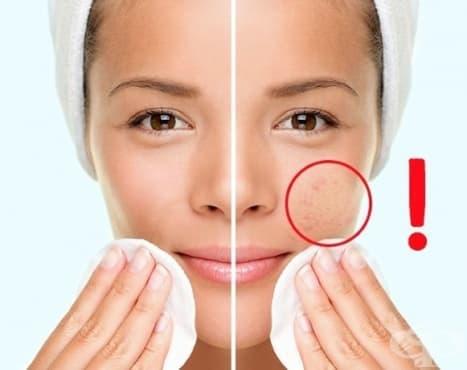 8 отлични навика, за които кожата ви ще ви благодари (2 част) - изображение