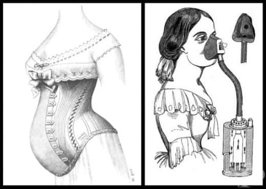 9 откачени неща, препоръчвани на бременните в миналото (1 част) - изображение