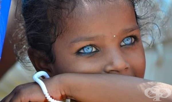 17 приказни деца със синдрома на Ваарденбург - изображение