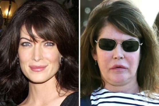 Вижте как са изглеждали знаменитостите преди операциите им за милиони (1 част) - изображение
