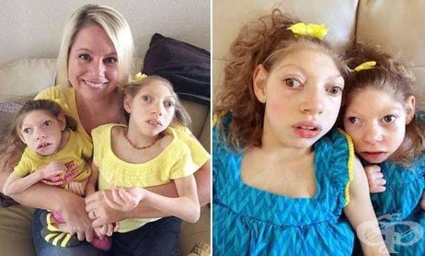 Запознайте се с момичетата, които не се примиряват с твърденията на докторите и оцеляват - изображение