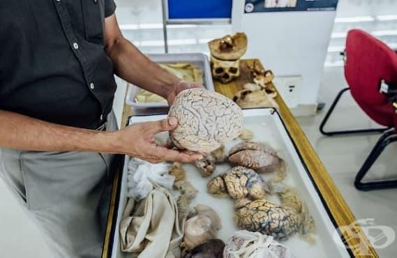 Да държиш човешки мозък в ръце – туристическа атракция в музей в Индия - изображение