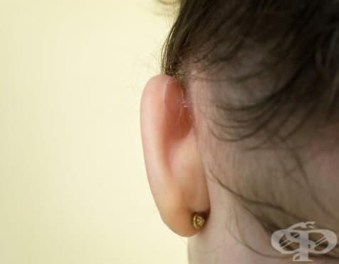 Иновация без операция срещу щръкнали уши - изображение