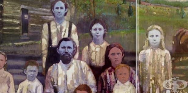 Родът Фугат, в който 200 години децата се раждат със синя кожа - изображение