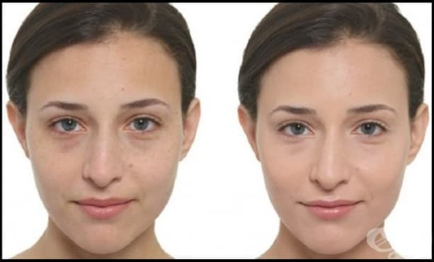 Значителните разлики между BB, CC, DD, EE, и РР кремовете и как да изберем точния - изображение