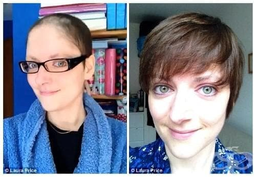 Вижте трансформацията на една жена след химиотерапия (timelapse видео) - изображение