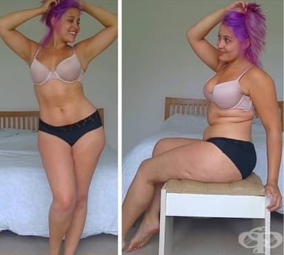 Победила анорексията жена ни учи да обичаме телата си такива, каквито са - изображение