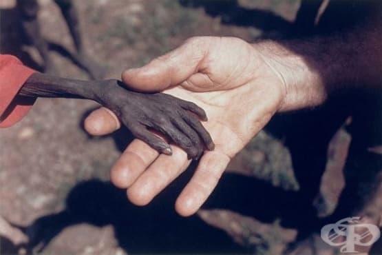 Изстрадалата детска ръка и срамът на фотографа – трогателната снимка, която обиколи света - изображение