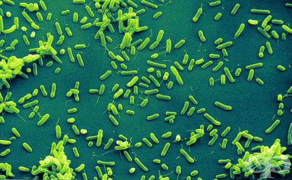Хемофилни бактерии (Haemophilus) - изображение