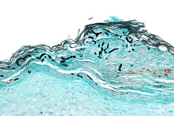 Дерматомикоза (Dermatomycosis) - изображение
