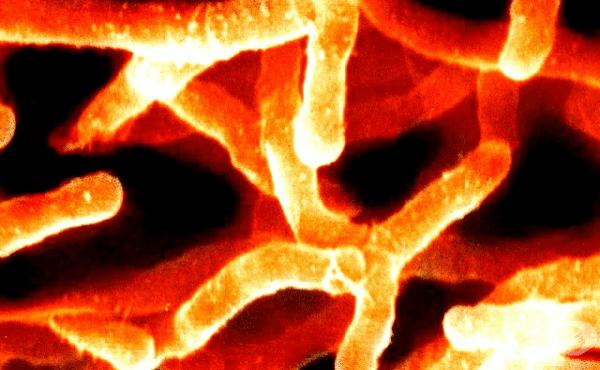 Актиномицети (Actinomyces) - изображение
