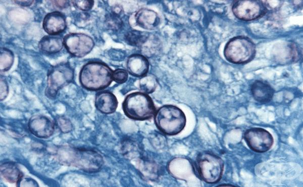 Хистоплазмоза (Histoplasma capsulatum) - изображение